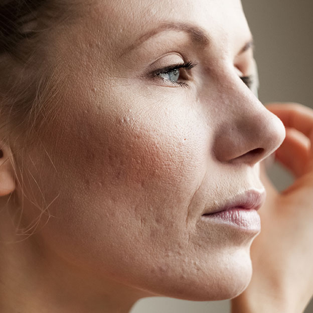 Skin problems: which makeup and skincare products to use?