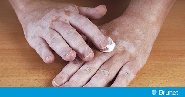 Vitiligo When Skin Loses Its Pigmentation Brunet