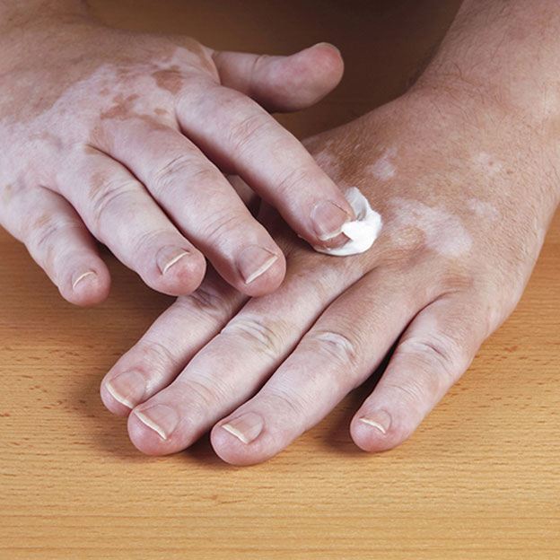 Vitiligo: when skin loses its pigmentation