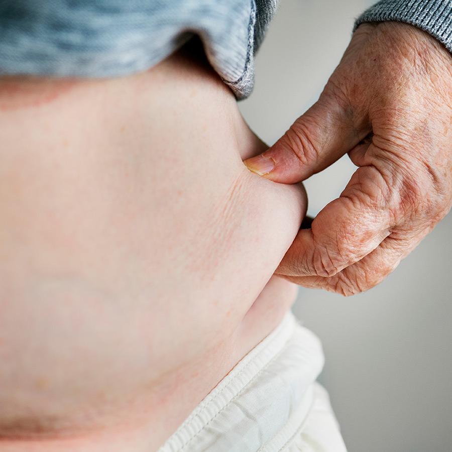 Obésité abdominale: 4 stratégies gagnantes!