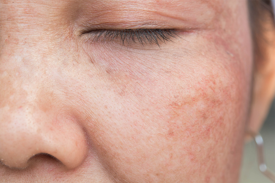 How to reduce dark spots?