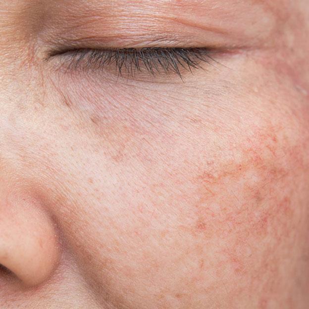 Comment atténuer vos taches pigmentaires?